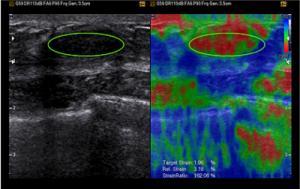 Công nghệ đàn hồi mô tuyến vú