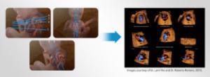 Công nghệ 5D trong đo tim thai nhi
